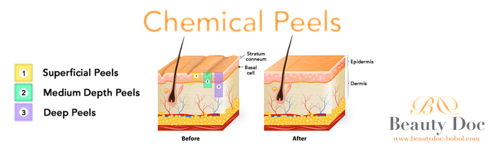 beautydoc_bohol_chemical_peels_page