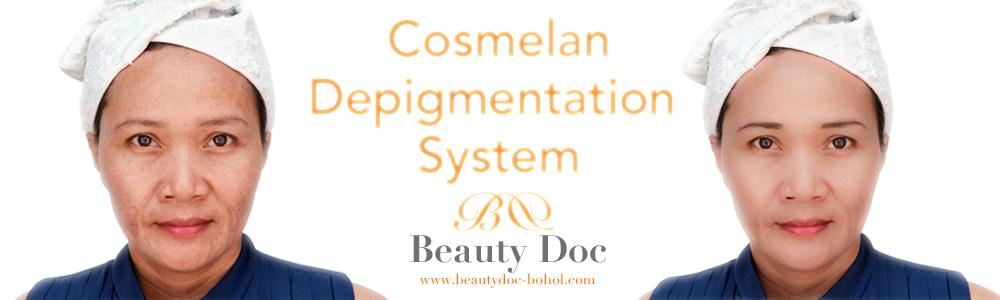 beautydoc_bohol_cosmelan_depigmentation_system_page