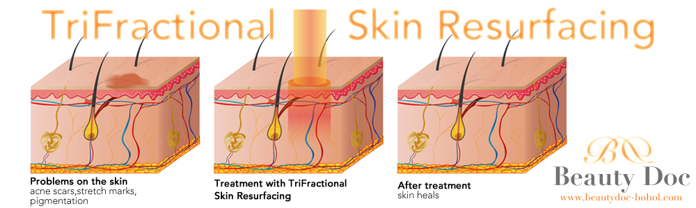beautydoc_bohol_trifractional_skin_resurfacing_page